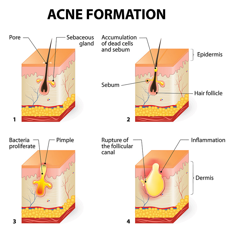 testochecker adult acne formation